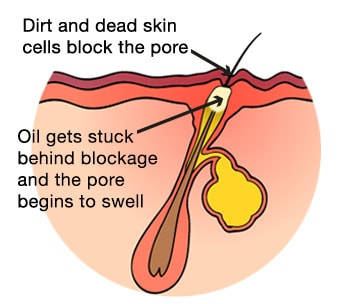 diagram of a pore clogged with oil spot forming